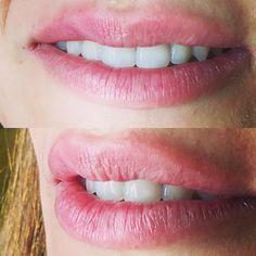 #fransizdolgusu güzel dişlere de ayrı yakışır  @atakanelter #dudak #dudakdolgusu #dogaldudak #dolgu