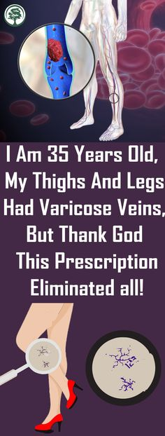 I Am 35 Years Old, My Thighs And Legs Had Varicose Veins, But Thank God This Prescription Eliminated all! The legs are an in particular critical frame component for women, which is why they usually try to make them appearance best. Health Tips For Women, Health Advice, Health And Wellness, Health Care, Health Fitness, Wellness Fitness, Mental Health, Healthy Tips, How To Stay Healthy