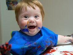 Speech Development in children with Down Syndrome