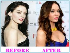 Rose Mcgowan Plastic Surgery Before And After #RoseMcgowanPlasticSurgery #RoseMcgowan #celebritiesplasticsurgery