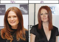 Photos Of  Julianne Moore Looks Just After Plastic Surgery 2014 - http://www.aftersurgeryjob.com/photos-julianne-moore-looks-plastic-surgery-2014/