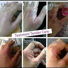 Tender Care Oriflame, Oriflame Beauty Products, Cosmetics & Perfume, Insta Saver, Baby Shower, Personal Care, Skin Care, Makeup, Instagram Posts