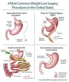 The types of bariatric surgery you should consider depend on a number of factors, including how much weight you want to lose, which health problems you are looking to improve, risk level and cost. Pre Bariatric Surgery Diet, Vsg Surgery, Bariatric Eating, Bariatric Recipes, Weight Loss Surgery, Surgery Gift, Gastric Sleeve Diet, Gastric Sleeve Surgery, Gastric Bypass Surgery
