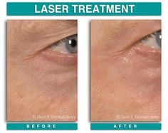 CO2 Laser Resurfacing | www.derickdermatology.com Co2 Laser Resurfacing, Laser Surgery, Appointments, Beauty Products, Hair, Fashion, Moda, Cosmetics
