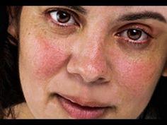 Remedios Naturales Para La Rosacea - Rosacea Sintomas, Rosacea Homeopatia http://rosacea-tratamiento.info-pro.co ¿Tienes Rosácea?  La rosácea es una enfermedad crónica de la piel , que afecta mayormente la cara. Las mujeres se ven afectadas con más frecuencia en las primeras etapas (enrojecimiento y eritrosis), pero en hombres de más de 40 años de edad esta condición puede progresar a estadios avanzados y rinofima. La rosácea se caracteriza por diversos trastornos
