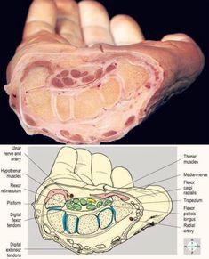 The anatomy of the wrist Nursing Notes, Nursing Tips, Wrist Anatomy, Hand Anatomy, Medical Anatomy, Muscle Anatomy, Medical Field, Medical Information, Anatomy And Physiology