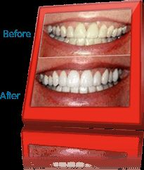 Try Whiten | Only 10 Minutes to a Whiter Smile!