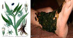"""La consuelda, también conocida como hierba para las heridas, oreja de vaca o hierba de los cardenales es una hierba perenne que ha sido utilizada por muchos años en la medicina tradicional china. Anuncio De hecho, a veces se le llama """"Soldadura de Hueso"""", porque se dice que es excelente para promover la reparación de …"""