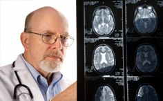 What is a stroke? What causes a stroke? What are the different kinds of strokes?