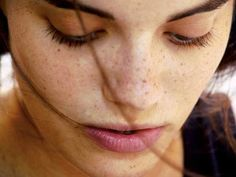 3 Natural Methods to Rid Yourself of Brown Spots on Your Schedule