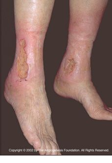 There are three main types of chronic wounds: venous ulcers, diabetic ulcers, and pressure ulcers. | Learn more here: http://www.scienceofwoundhealing.org/types.php#