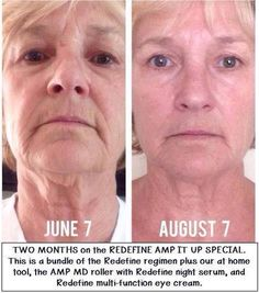 I'd say those 2 months with Rodan + Fields REDEFINE Regimen and the AMP MD Roller did her well! It's worth a try with our 60 day guarantee! Rodan Fields Skin Care, My Rodan And Fields, Rodan And Fields Redefine, Redefine Regimen, Skin Care Regimen, Anti Aging, Amp Md Roller, Love Your Skin, Skin Firming