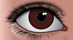 Laser eye treatment can be performed only on those people who are above 18 years and have no infection in their eyes. There is no intra-operative pain during surgery and a laser device is used to achieve painless surgery results.
