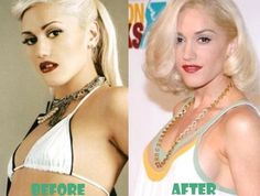 Gwen Stefani Plastic Surgery Before and After Breast Implants, Nose Job - Awful Surgery Celebrity Bra Sizes, Celebrity Surgery, Breast Implant Illness, Plastic Surgery Before After, Beauty Tips For Women, Gorgeous Body, Gwen Stefani, Body Measurements, Beauty Hacks