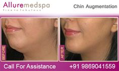 Alluremedspa offers Chin lift Surgery that removes excess fat deposits under the chin and skin relaxation in the lower face that creates jowls and improves visible signs of aging in the jawline and neck with top surgeon in Mumbai, India Body Surgery, Weight Loss Surgery, Chin Implant, Surgeon Doctor, Neck Lift, Surgery Center, Hair Transplant, Jawline, Kota Bharu