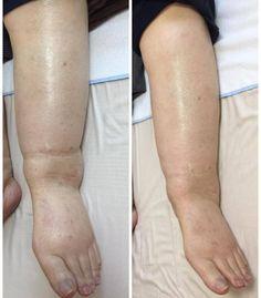 脚のムクミを一瞬で改善する方法 | 魔法のタッチ さとう式リンパケア