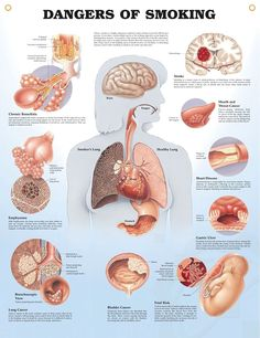 Dangers of Smoking anatomy poster discusses and illustrates the common dangers of smoking including emphysema and lung cancer.