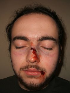 broken nose - Google Search Blood Makeup, Fx Makeup, Broken Nose, Special Effects, Halloween Makeup, Mma, Stage, Eyes, Battle