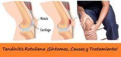 Tratamiento de la Tendinitis Rotuliana
