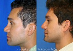 Considering a nose job? Rhinoplasty is a common procedure for Dr Amir Karam of Carmel Valley Facial Plastic Surgery in San Diego. Honey Face Cleanser, Rhinoplasty Before And After, La Jolla, Plastic Surgery, Facial, Facial Treatment, Facial Care, Face Care