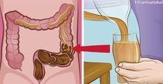 Evita el cáncer de colon, no sufras más de estreñimiento ni acumules basura dentro de tu cuerpo. Solo toma este rico remedio. – Curiosa Salud