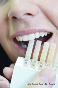 Dental veneers improve the appearance of your smile and increase your confidence. Veneers are used in cases of damaged, broken and discolored teeth.  #Dental_veneers  http://mydentistupland.com/dental-services/veneers/