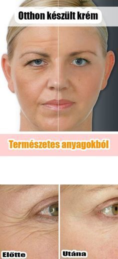 Great Skin Care Tips Can Change Your Life - Lifestyle Monster Facial Mask With Botox Effect. Cheap and Easy to MakeFacial Mask With Botox Effect. Cheap and Easy to Make Beauty Care, Beauty Hacks, Beauty Skin, Beauty Solutions, Face Beauty, Beauty Advice, Beauty Tutorials, Beauty Ideas, Beauty Secrets