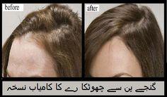 Hair Loss Tipگنجے پن سے چھوٹکا رے کا کامیاب نسخہ