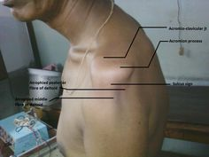 Subluxation of Shoulder joint (Gleno-humeral joint) - best treated by using electrical stimulation (E.S) Russian current. Sulcus sign appears like a fissure at the gleno-humeral space due to the inferior subluxation of head of the humerus, where the capsule is most weak.