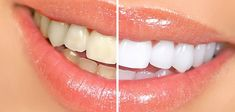 Home remedies for yellow teeth treatment. How to get rid of yellow teeth? How to whiten teeth? Remedies to get white teeth. Teeth Whitening Remedies, Natural Teeth Whitening, Whitening Kit, Turmeric Anti Inflammatory, White Teeth, Natural Home Remedies, Baking Soda, Health And Beauty, Holistic Nutritionist