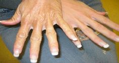 How To Get Younger Looking Hands: Home Remedies For Dry And Rough Hands. Beauty Care, Diy Beauty, Beauty Hacks, Rough Hands, Hand Massage, Sr1, Les Rides, Exfoliant, Hand Care