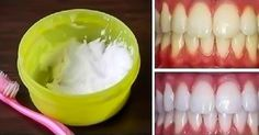 Who doesn't want to have beautiful white teeth ? Here is a nice and easy idea for whitening your teeth at home, it's a natural way with 2 ingredients: Teeth Whitening Remedies, Natural Teeth Whitening, Gum Health, Oral Health, Health And Beauty Tips, Health Tips, Home Remedies, Natural Remedies, Make Teeth Whiter