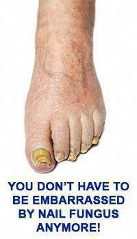 SHOP EMUAID® NOW   About Toe Nail Fungus It is estimated that over 35 million people face the yellow, brittle, and sometimes-painful symptoms associated with fingernail and toenail fungus (a disease or condition also called onychomycosis). Fungi can creep underneath nails on the toes and fingers, causing a nail infection. You can pick up fungus from washing in public shower, swimming public pools, contaminated clippers, or warm, moist, dirty footwear. It #NormalHairLoss Argan Oil For Hair Loss, Best Hair Loss Shampoo, Biotin For Hair Loss, Biotin Hair, Hair Shampoo, Why Hair Loss, Hair Loss Cure, Toenail Fungus Remedies, Toenail Fungus Treatment