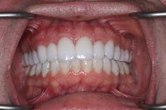 View and rate Dr. McDowell's work on Rankipedia. LVI Core V Case : http://www.rankipedia.com/dentist/dentistprofile/Dr-Brian-C-McDowell-DDS-Fitchburg/01420/id/125782