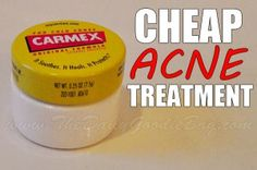 Cheap Acne Treatment - Get rid of pimples using Carmex! Cheap Acne Treatment - Get rid of pimpl Acne Treatment At Home, Cystic Acne Treatment, Homemade Acne Treatment, Oily Skin Treatment, Scar Treatment, Home Remedies For Acne, Acne Remedies, How To Get Rid Of Pimples, Acne Scar Removal