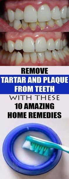 Causes Of Mouth Ulcers, What Causes Tooth Decay, Remedies For Tooth Ache, Oral Surgery, Best Oral, Oral Hygiene, Oral Health, Health Care, Teeth Health