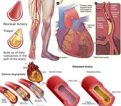 ketosis cause high blood pressure - low blood pressure old age - low blood pressure vegan diet - blood pressure meds and grapefruit juice - blood pressure machine dinamap - ambulatory blood pressure monitoring cpt 8745525286 What Is Blood Pressure, Normal Blood Pressure, Varicose Vein Remedy, Varicose Veins, Natural Treatments, Natural Remedies, Get Rid Of Spider Veins, Peripheral Artery Disease, Human Body Systems