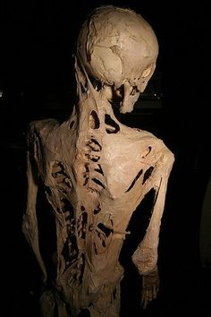 The skeleton of Harry Raymond Eastlack, Jr, who had a rare genetic disease that turned is muscle to bone.
