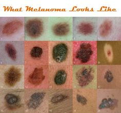 What Melanoma Looks Like - Mine looked like a beauty mark.  Caught very, very early.