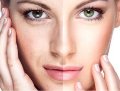Get best anti-aging treatment with Sellas fractional Laser Treatment in Dubai. Get smooth and attractive skin with outstanding results at Euromed. Beauty Tips For Face, Beauty Hacks, Face Beauty, Centre Laser, Laser Co2, Mini Face Lift, Fractional Laser, Chemical Peel, Skin Treatments