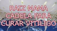 remedios caseros para el vitiligo con  Raiz Mama cadela