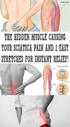 The Hidden Muscle Causing Your Sciatica Pain and 2 Easy Stretches for Instant Relief Sciatic Nerve Relief, Sciatic Pain, Sciatica Symptoms, Piriformis Muscle, Sciatica Exercises, Knee Exercises, Stretching Exercises, Piriformis Syndrome, Bodybuilding Workouts