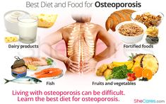 Getting the right foods in your diet can help to improve the symptoms of osteoporosis. Learn the best diet for osteoporosis and what foods to eat and avoid Foods To Avoid, Foods To Eat, Calcium Rich Foods, Bone Healing Foods, Osteoporosis Diet, Health And Nutrition, Health Foods, Health Tips