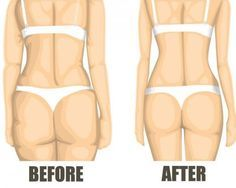 Reduce Water Retention Looking for ways to get rid of cellulite from your body? What is cellulite in the first place? Cellulite is a medical condition in which the skin, mainly on the abdomen, pelvic region and thighs, becomes dimpled. What Is Cellulite, Cellulite Cream, Reduce Cellulite, Anti Cellulite, Cellulite Workout, Cellulite Scrub, Fitness Goals, Yoga Fitness, Health Fitness