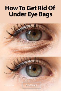 Under Eye Wrinkles, Under Eye Puffiness, Dark Circles Under Eyes, Dark Under Eye, Remove Dark Eye Circles, Diy Eye Bags, Diy Under Eye Bags, Reduce Under Eye Bags, How To Get Rid Of Bags Under Eyes