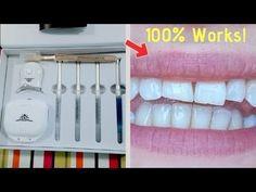 Proof The Billionaire teeth whitening Kit Works In Just 7 Days! Teeth Whitening Methods, Teeth Whitening That Works, Natural Teeth Whitening, Whitening Kit, Billionaire, It Works, Day, Change, Smile