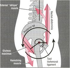 Rotate hip back to natural alignment= good (look at the alignment of the abs n biomechanics! :) anterior pelvic tilt correction Yoga Anatomy, Pelvis Anatomy, Hip Anatomy, Hip Pain, Knee Pain, Low Back Pain, Thigh Muscles, Pelvic Tilt, Pelvic Floor