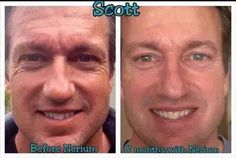 Men are seeing amazing results