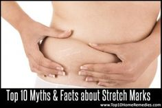 Natural fixes for stretch marks! Love all natural remedies :)