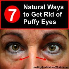 Here are 7 natural ways to get rid of puffy eyes. Use things you already have in your home, or at your local supermarket, for effective under-eye treatments. care dark circles care logo care skin care tips care vision Beauty Care, Beauty Hacks, Beauty Skin, Diy Beauty, Face Beauty, Beauty Secrets, Under Eye Bags, How To Get Rid Of Bags Under Eyes, Home Remedies For Hair